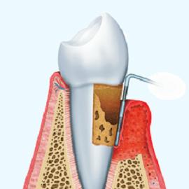 La correlazione tra malattie parodontali e malattie sistemiche