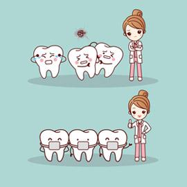 Alitosi e parodontite
