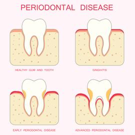 Stadi di evoluzione della malattia parodontale: da Gengivite a Parodontite