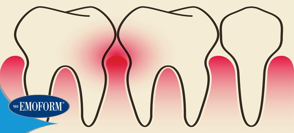 Ecco perché esiste una correlazione fra parodontite e malattie cardiovascolari