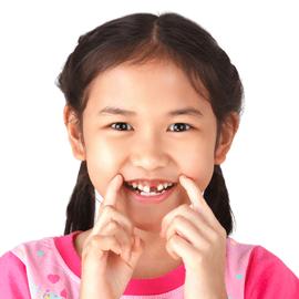 Il trauma dentale nell'individuo in età evolutiva